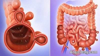 رژیم غذایی مناسب به درمان این بیماری کمک می کند.