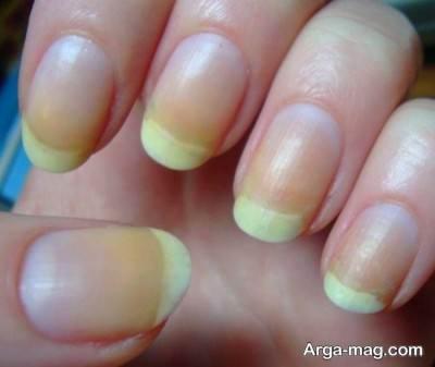 علت زرد شدن ناخن