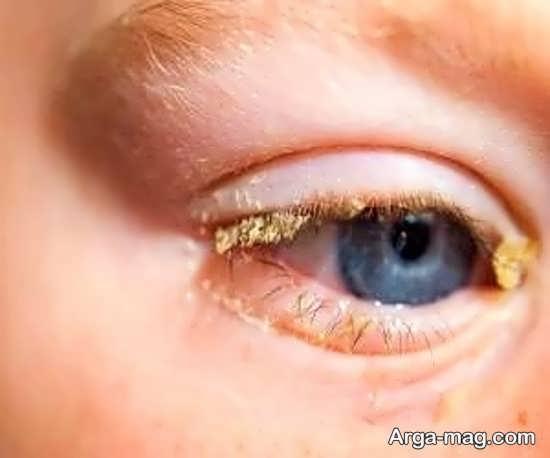 دلایل رایج قی کردن چشم کودک