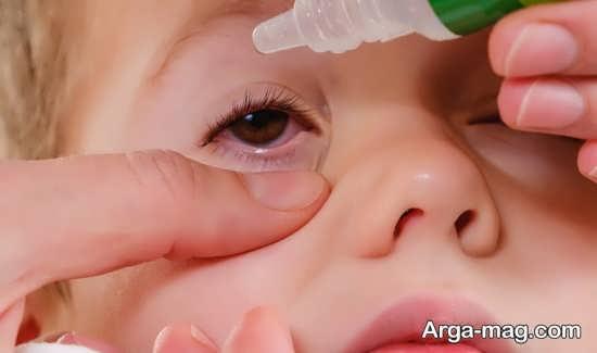 طریقه بهبودی قی چشم کودک