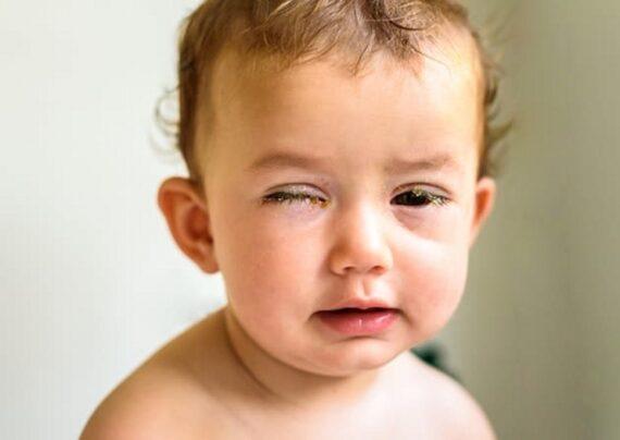 علل و دلایل اصلی قی کردن چشم نوزاد