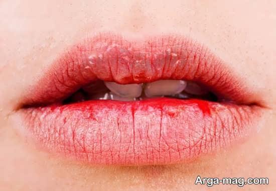 علل اصلی خشک شدن دهان در حاملگی
