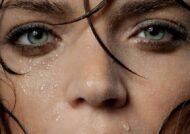 علل تعریق زیاد سر و صورت