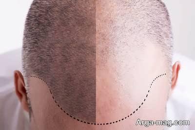 پیوند مو
