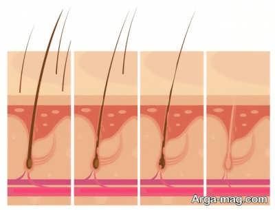 بررسی پیوند مو