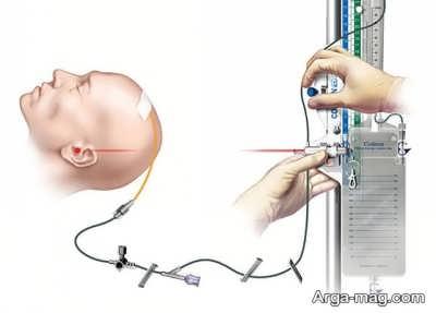 علل فشار داخل سر چیست؟