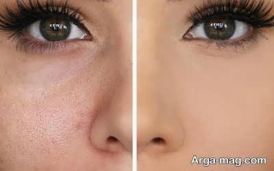 آرایش پوست با منافذ باز