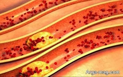 درمان های پزشکی برای باز شدن رگ ها