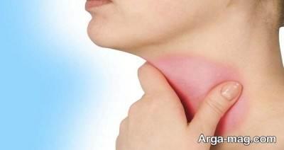 درمان خشک شدن گلو در خانه