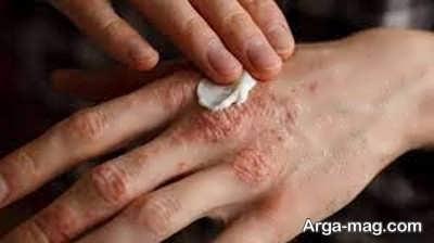 درماتیت و آلرژی