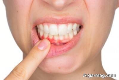 درمان عفونت دهان با عسل