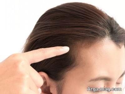 استفادهاز غذا های کلسیم دار ریزش مو هورمونی را کنترل می کند.