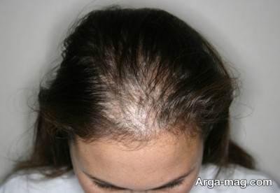 درمان ریزش مو با تغذیه سالم