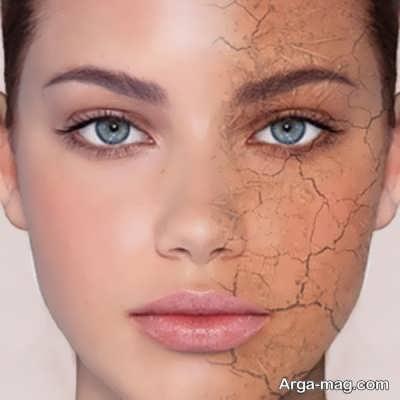 لایه بردار پوست خشک چیست؟