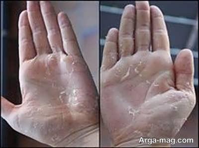 پوسته شدن دست ها