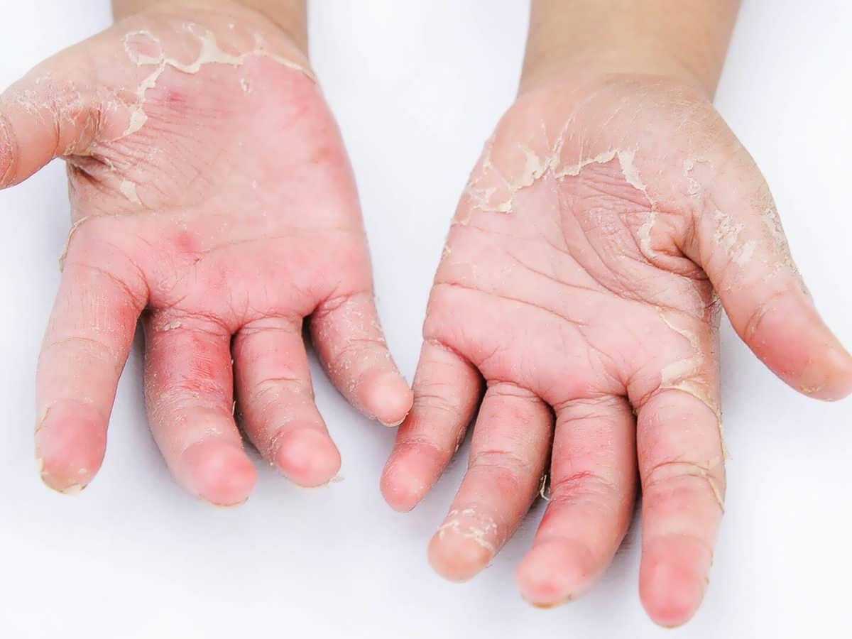 علت پوسته شدن دست