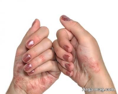 درمان پوسته شدن دست