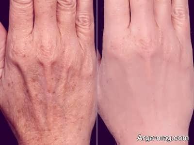 راه های تقویت پوست دست
