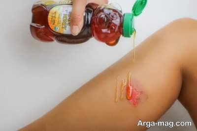 معرفی درمان های زخم با عسل