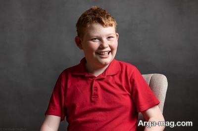 درمان های ناسب برای کودکان مبتلا به آنجلمن