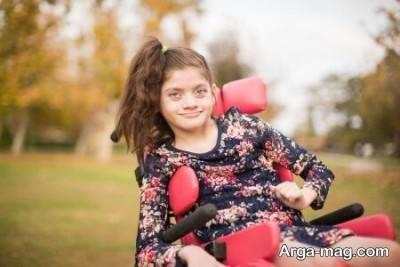 بیش فعالی در کودکان مبتلا به آنجلمن بیش تر است.