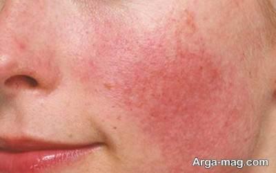 پسوریازیس یکی از عوامل قرمز شدن پوست می باشد.