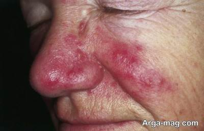 سوختگی تابشی پوست