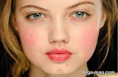 عوامل مختلف قرمزی پوست