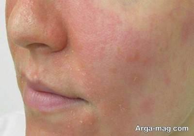 قرمزی پوست بر اثر بیماری مخملک