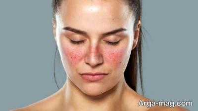 عوامل قرمز شدن پوست