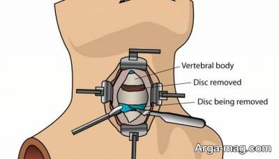 جراحی گردن از جلو