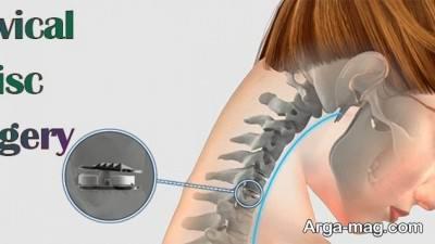جراحی گردن از پشت