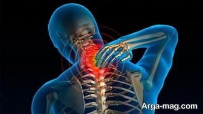 دیسک گردن چیست؟