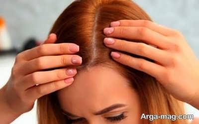 میزان طبیعی در ریزش مو