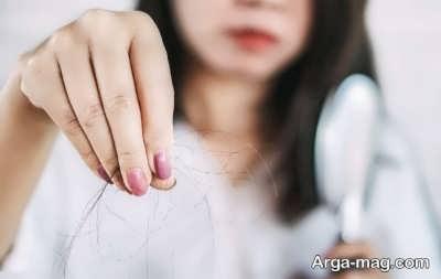 مقدار طبیعی برای ریزش مو