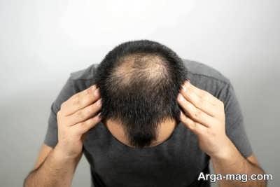 میزان طبیعی در مورد ریزش مو