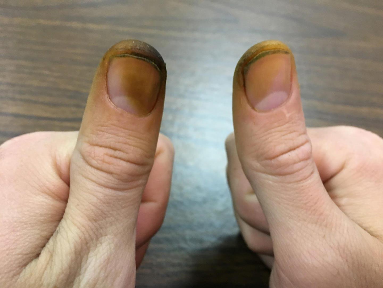 آشنایی با نحوه پاک کردن رنگ گردو از دست