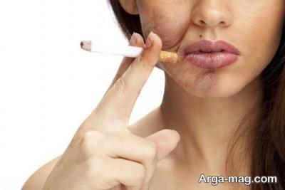 افتادگی پوست و سیگار کشیدن