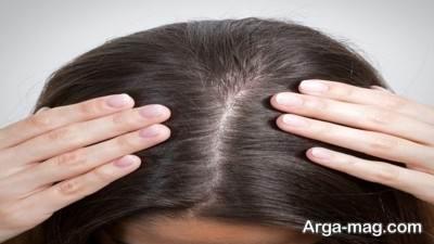 تقویت ذهن و کاهش ریزش موی دیابتی