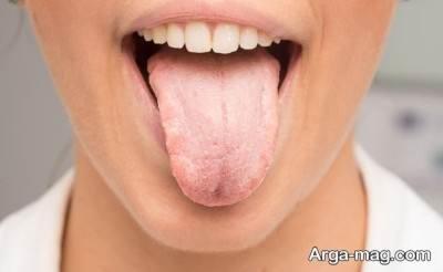 خشکشدن دهان و بیماری شوگرن