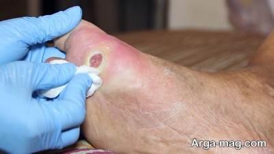 درمان زخم های دیابتی
