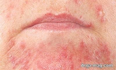 برای درمان مشکلات پوستی باید علل آن را شناسایی کنید.