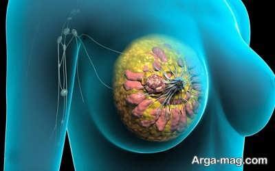تاثیر سرطان سینه در خارش بدن بعد از حمام