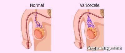 راهکار های مفید در درمان واریکوسل